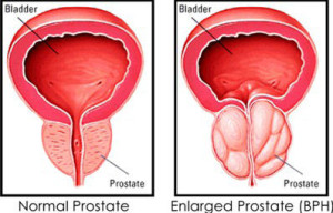 Normal-Enlarged Prostate
